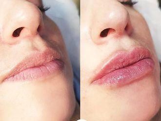 Aumento labios - 794595