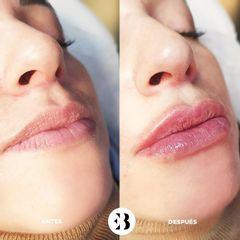 Aumento de labios y definición del contorno Dra Elena Berezo