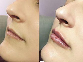 Aumento labios - 794596