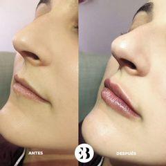 Aumento de labios Dra Elena Berezo
