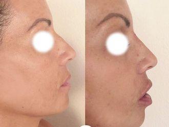 Aumento labios - 794597