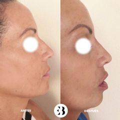 Rinomodelación y aumento de labios Dra Elena Berezo