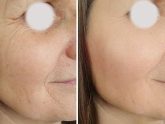 Rellenos faciales - 794599