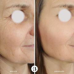 Botox y relleno de ojeras Dra Elena Berezo