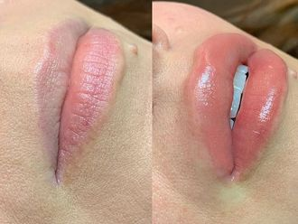 Aumento labios - 794600
