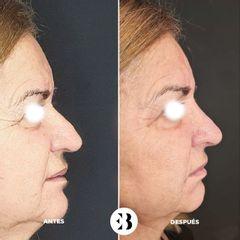 Elevación punta nasal Dra Elena Berezo