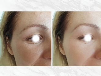 Rellenos faciales - 794604