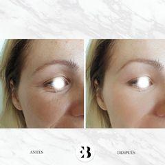 Total face Botox, Relleno y Peeling Dra Elena Berezo