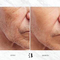 Ácido hialurónico - Dra. Elena Berezo