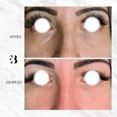 Eliminación de ojeras - Dra. Elena Berezo