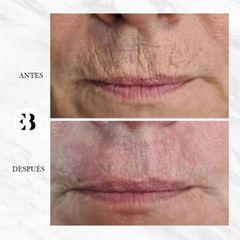 Rejuvenecimiento facial - Dra. Elena Berezo