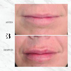 Aumento de labios - Dra Elena Berezo