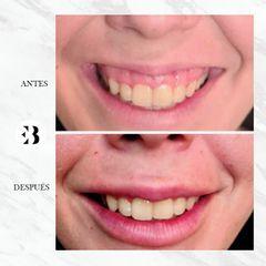 Sonrisa Gingival - Dra Elena Berezo