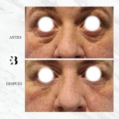 Tratamiento de ojeras - Dra Elena Berezo