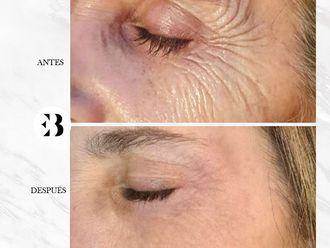 Rejuvenecimiento facial - 795427