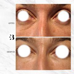 Eliminación de ojeras -  Dra Elena Berezo
