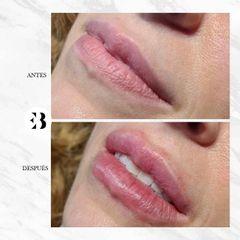 Aumento de labios - Dra. Elena Berezo