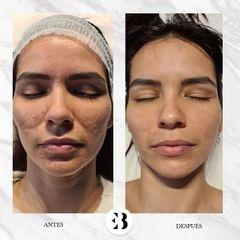 Peeling - Dra. Elena Berezo