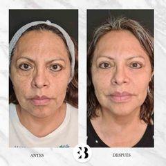 Aumento de pómulos - Dra. Elena Berezo