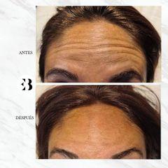 Toxina Botulínica - Dra. Elena Berezo