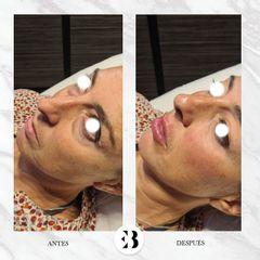 Total face - Dra. Elena Berezo