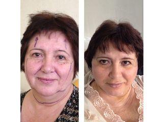 Antes y después Lifting facial y aumento de labios con Permalip