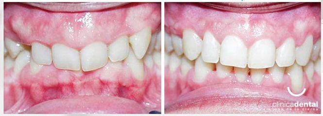 Clínica Dental Juan De La Cierva