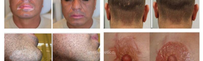 Micropigmentación médica