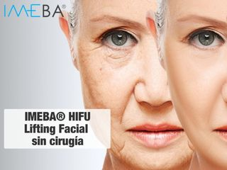 HIFU Ultrasonido focalizado  - Lifting Facial y corporal sin cirugía