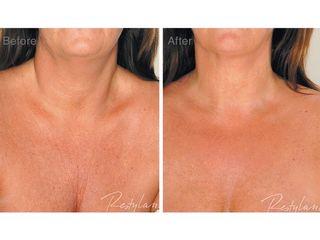 Antes y después Mesoterapia con Restylane
