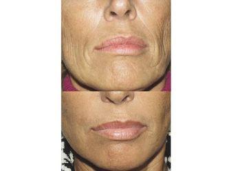Rellenos faciales-496777