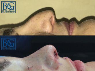 Rinoseptoplastia - 603184