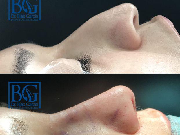 Dr. Blas García - Cirugía Plástica y Estética Facial