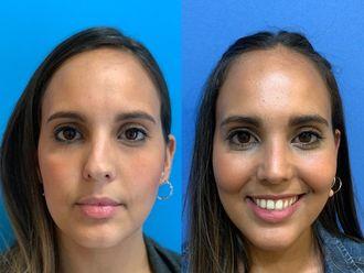 Cirugía estética-640438