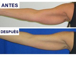 Antes y después Tratamiento radiofrecuencia ACCENT corporal