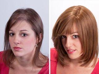 Antes y después Tratamiento capilar