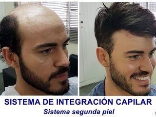 Antes y después Sistema integración capilar segunda piel