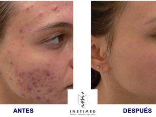 Antes y después Tratamiento acné
