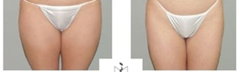 lipoescultura de abdomen y muslos