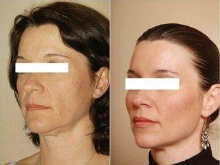 Antes y después Lipofilling facial