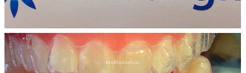invisaling ortodoncia transparente