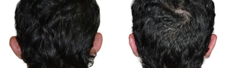 Operación de orejas por Dr. Javier Maiz
