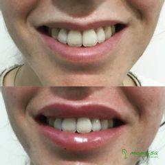 Antes y después Sonrisa gingival - Monalisa Clínicas