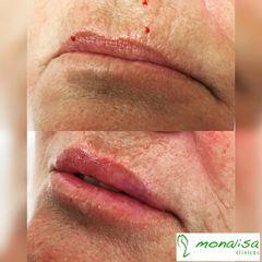 Aumento de labio y blanching - Monalisa Clínicas
