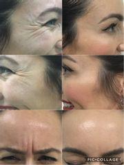Botox tercio superior facial - Monalisa Clínicas