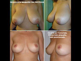 Reducción senos - 593512