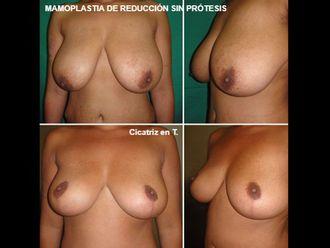 Reducción senos - 593513