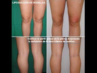 Liposucción-593521