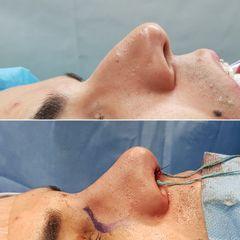 Antes y después Rinoplastia - Dr. José María Triviño Fernández