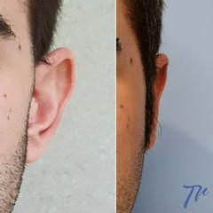 Otoplastia - Dr. José María Triviño Fernández